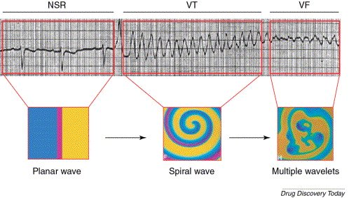 Image of ECG waves